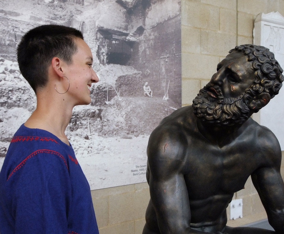 a young woman with a shaved head smiles at a bronze boxer with facial wounds