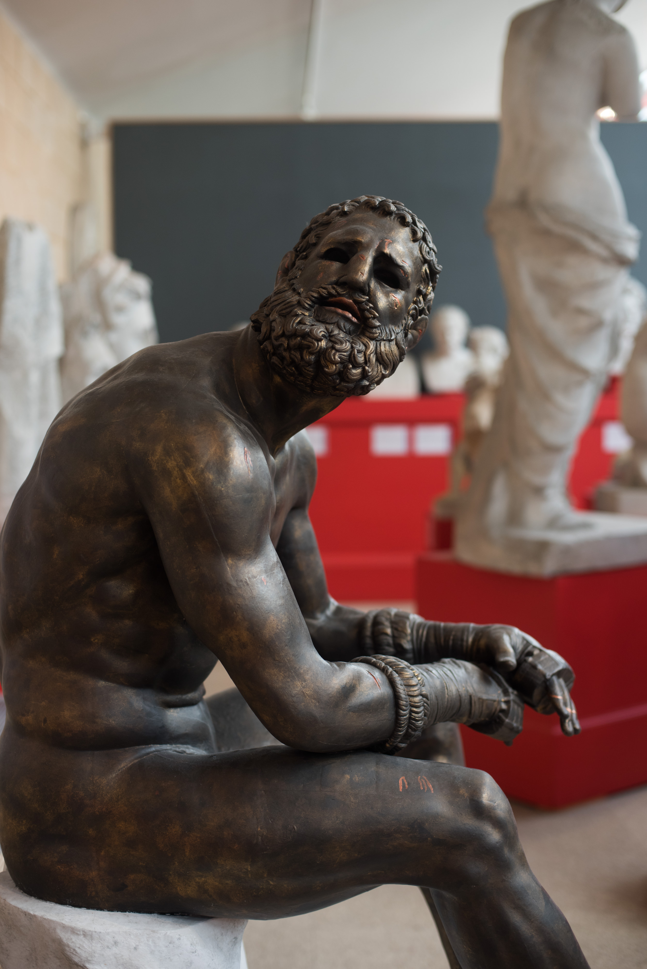bronze boxer sitting, with arms resting on knees, looking up with a bloody face